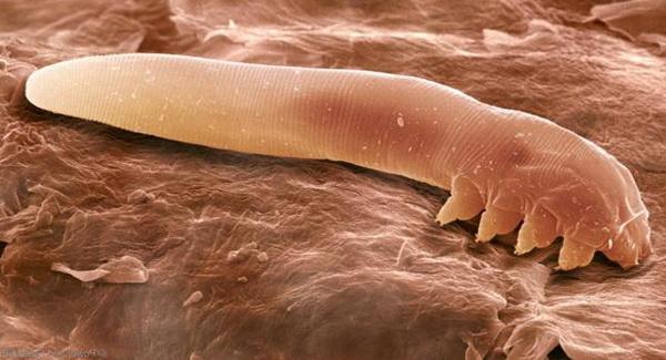 ресничный клещ демодекс