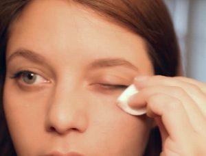 воспаление нижнего века глаза лечение
