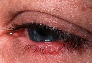 воспаление глаза нижнее веко