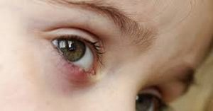 воспаление нижнего века глаза