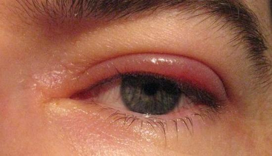 воспаление верхнего века глаза лечение