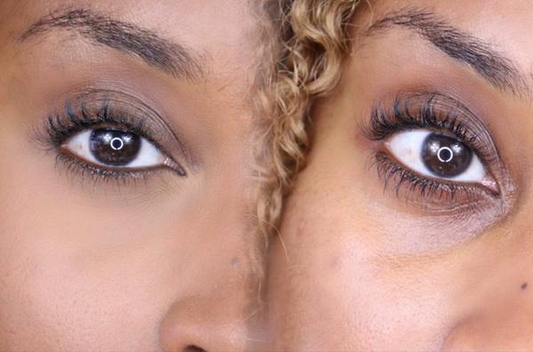как избавиться от малярных мешков под глазами