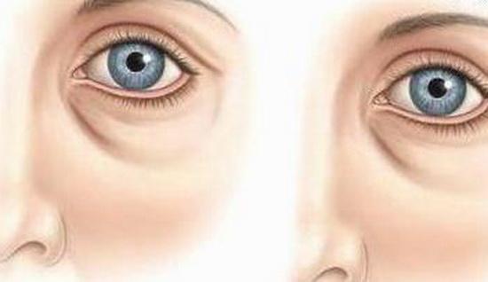 коррекция носослезной борозды филлерами осложнения