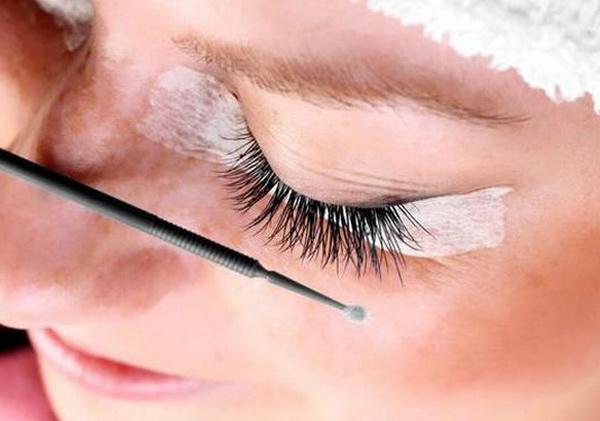 аллергия на клей для наращивания ресниц