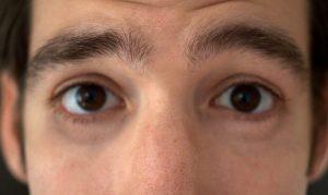 почему шелушатся брови