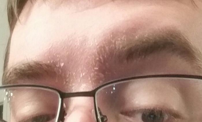 Шелушение бровей