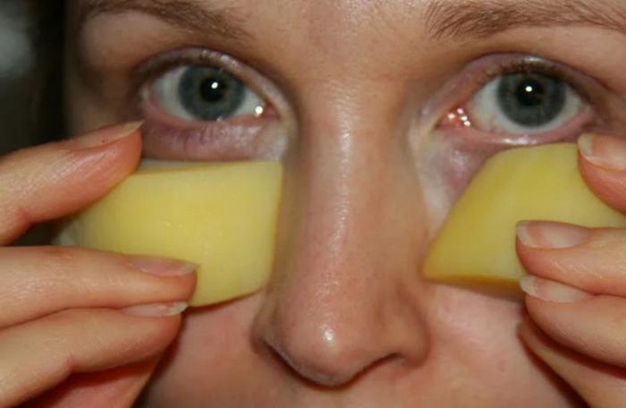 Эффективно помогает справиться с отеками сырой картофель