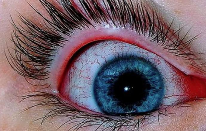 Как сделать белки глаз более белыми?