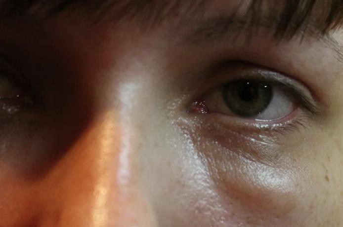 Появился мешок под одним глазом — это что, болезнь?