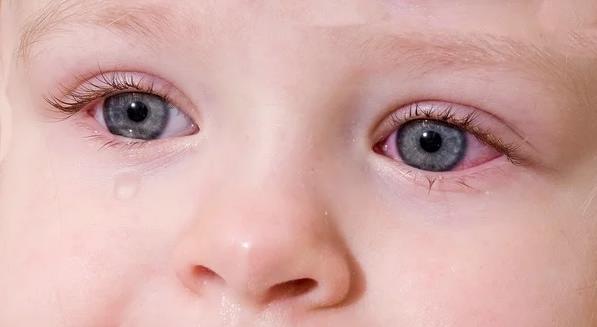 Не оставляйте без внимание состояние глаз у ребенка