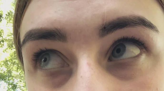 С детства синяки под глазами — почему и как убрать
