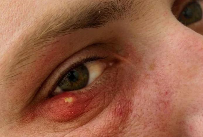 Если у вас на каком-то глазу часто бывает ячмень, обратитесь к психологу или телесному терапевту