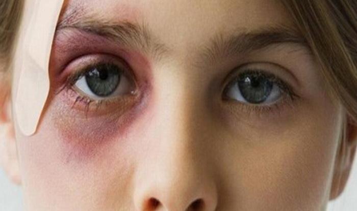 7 причин, почему болит глаз, как будто синяк, но ничего нет