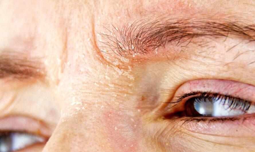 К чему чешутся брови — 20 примет и 11 причин зуда у женщин и мужчин
