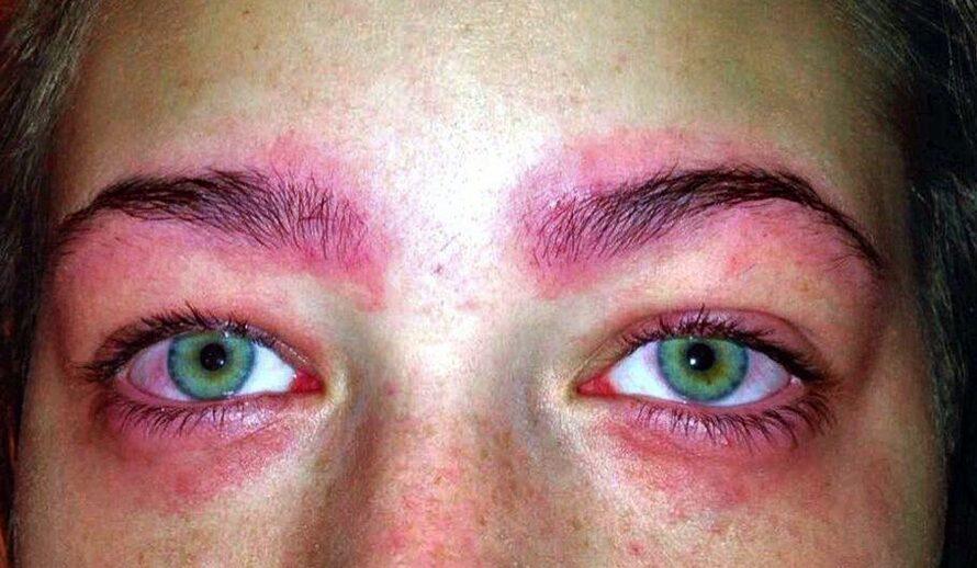 Аллергия на краску для бровей – 9 признаков, 10 лучших средств для снятия